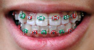 גשר בשיניים